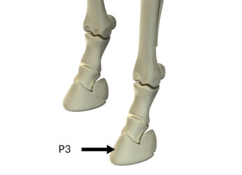 AskHQ: What is pedal osteitis?
